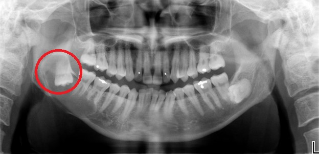 wisdom teeth removal surgery dentist in Singapore